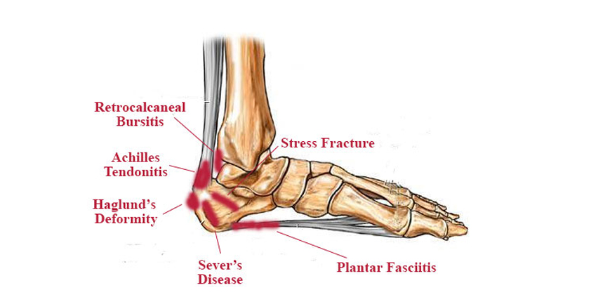 Heel Pain – 4 Life Podiatry