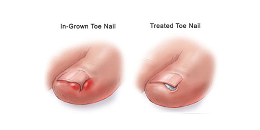 Ingrown Toe Nail – 4 Life Podiatry
